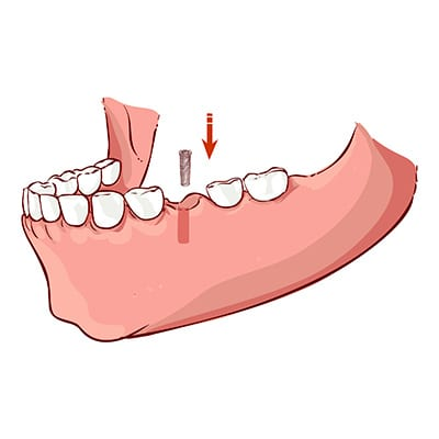 Placing the dental implant